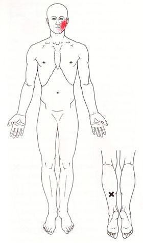 TPヒラメ筋
