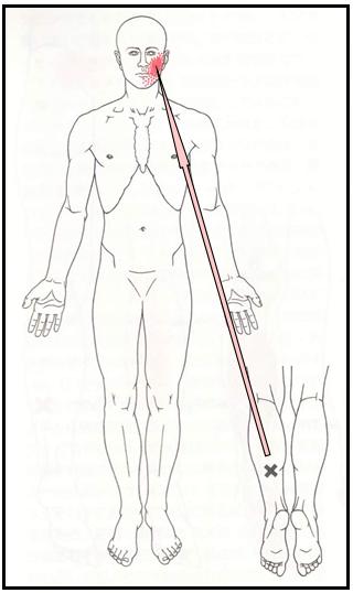 ヒラメ筋関連痛