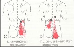 腸肋筋上のトリガーポイント