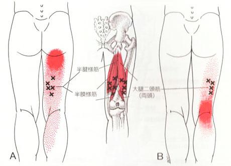 ハムストリング筋のTP図