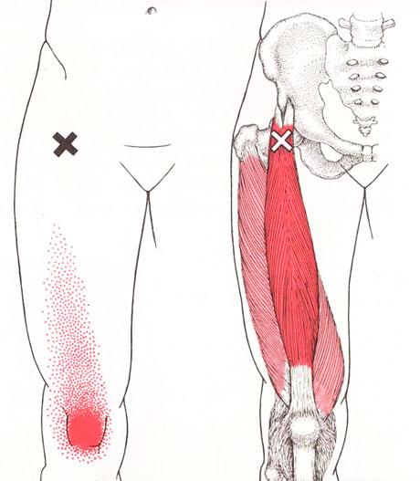 大腿直筋のTP図