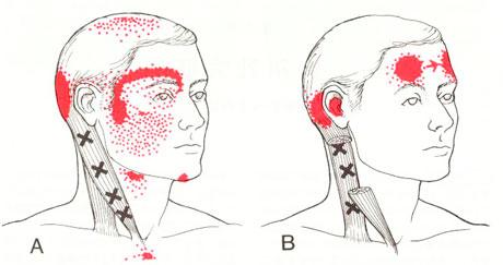胸鎖乳突筋のTP図