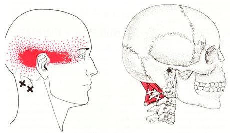 後頭下筋のTP図
