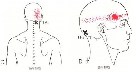 頭半棘筋・頸半棘筋のTP図