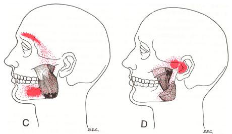 咬筋のTP図