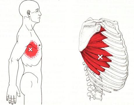 前鋸筋のTP図