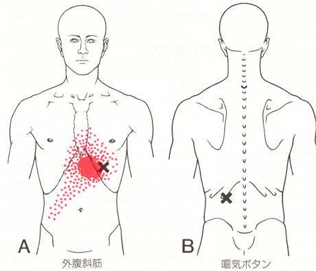 外腹斜筋のTP図