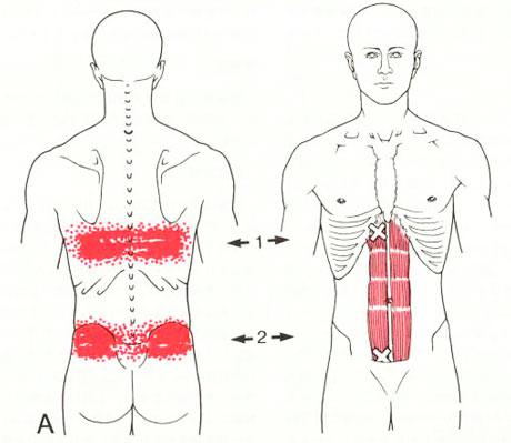 腹直筋のTP図