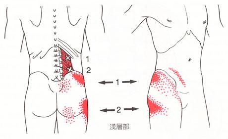 腰の痛みの図